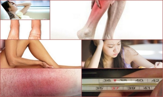 Тендовагинит - причины, симптомы и методы лечения
