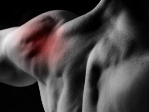Лечение асептического некроза головки плечевой кости