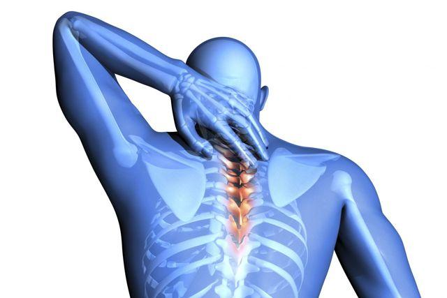 Невралгия шейного отдела: причины, симптомы, лечение