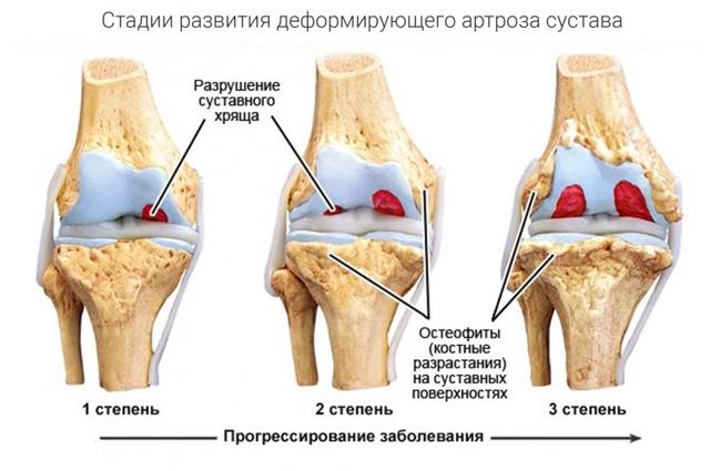 Лечение суставов скипидаром: рецепт, польза и вред