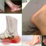 Бурсит пятки: лечение, симптомы, причины, фото