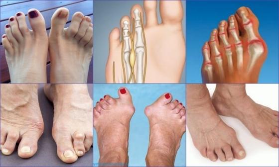 Артрит пальцев ног: симптомы и лечение