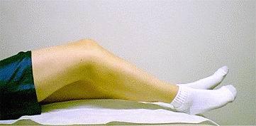 Реабилитация после пластики ПКС — этапы и упражнения