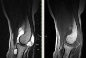 Артроз локтевого сустава 1 и 2 степени: симптомы и лечение