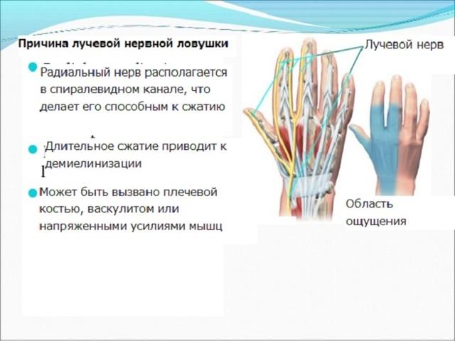 Невралгия лучевого нерва: причины, симптомы, лечение