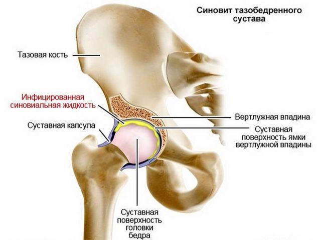 Синовит тазобедренного сустава: симптомы и лечение