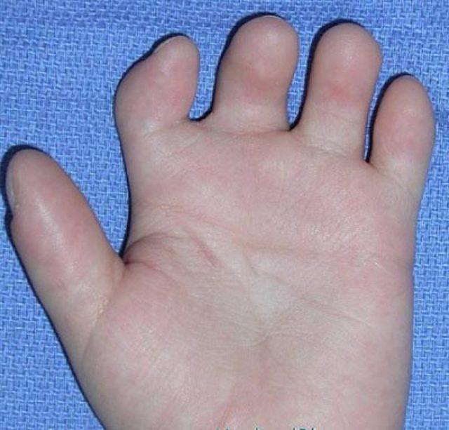Брахидактилия: причины, симптомы, лечение и фото
