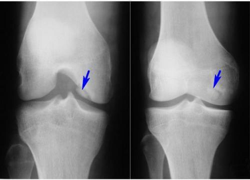 Суставная мышь коленного сустава: симптомы, диагностика и лечение