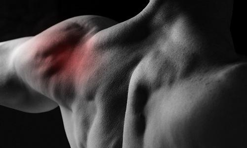 Подвывих плечевого сустава: симптомы и лечение