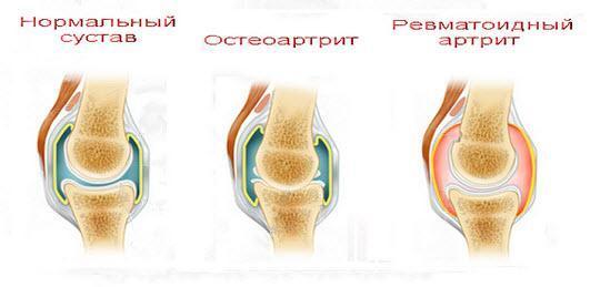 Диета при ревматоидном артрите суставов: правила и советы