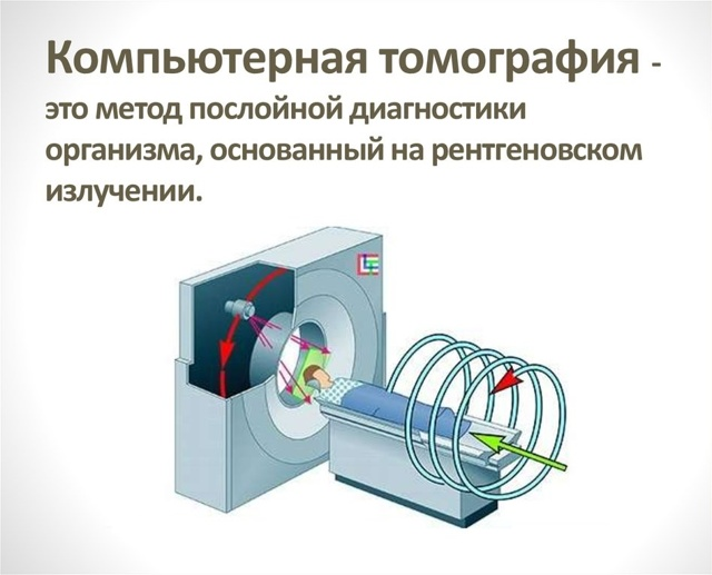 Как делают рентген копчика и крестца. Правильная подготовка к рентгену копчика и крестца