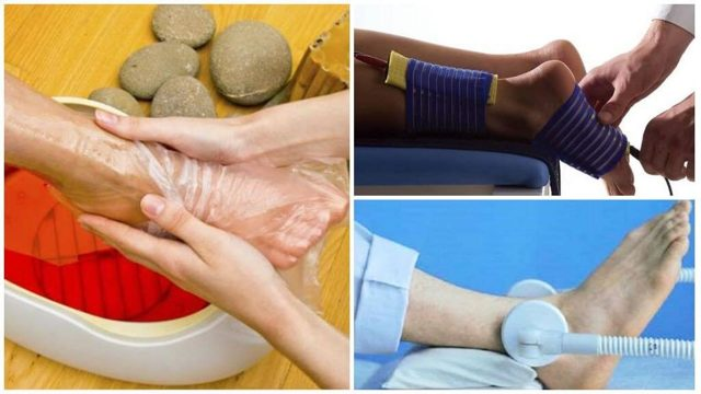 Физиотерапия при подагре как способ лечения заболевания