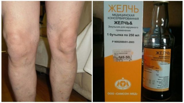 Медицинская желчь при артрозе коленного сустава: лечение компрессом