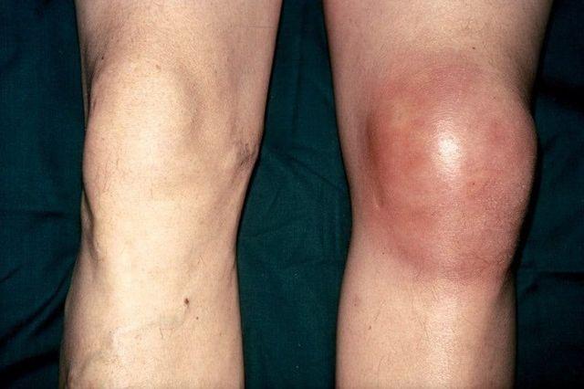 Ортез на коленный сустав: показания к применению, виды