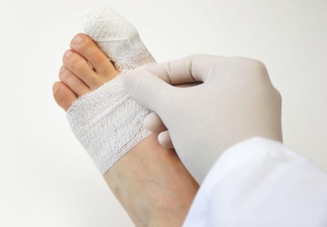 Перелом большого пальца на ноге фото