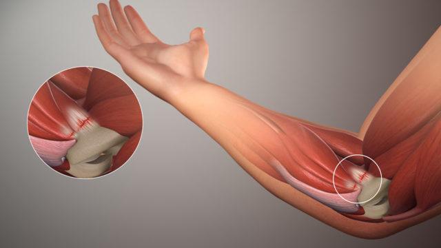 Лечение боли в локтевом суставе народными средствами