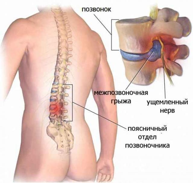 Карипазим при грыже позвоночника: лечение и инструкция