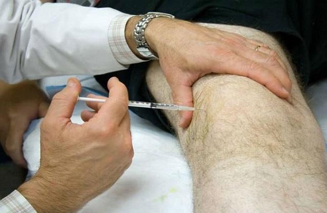 Болезнь Гоффа - симптомы, диагностика и лечение