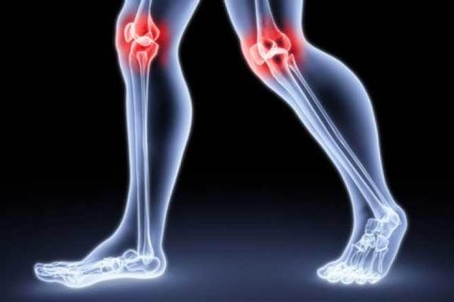Лечение воспаления коленного сустава в домашних условиях
