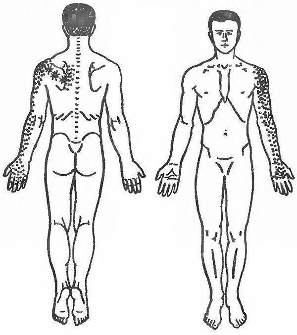 Больно завести руку за спину: причины и лечебные меры