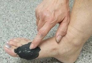 Употребление фасоли во время лечения подагры