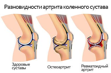 Болит колено при подъеме по лестнице: причины, лечение
