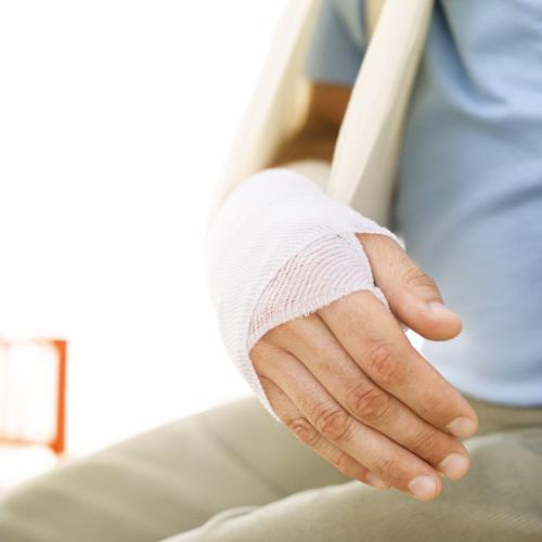 Оскольчатый перелом лучевой кости со смещением