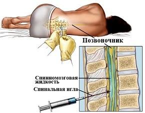 Пункция плечевого сустава: показания и техника проведения