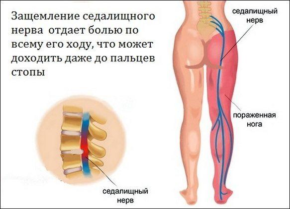 Почему болят ноги от бедра до стопы: причины, заболевания
