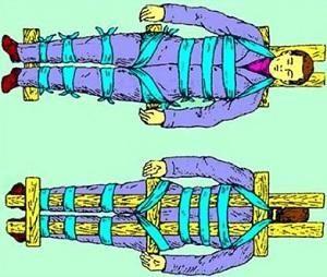 Транспортировка при переломе позвоночника — каким образом осуществляется