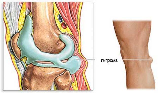 Гигрома пальца руки: фото, симптомы, причины и лечение