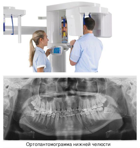 Перелом челюсти - виды, симптомы и методы лечения