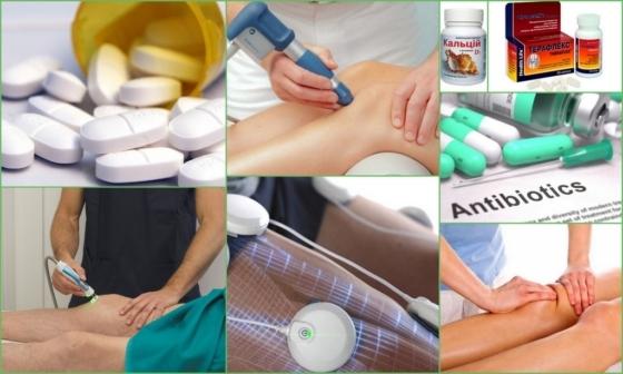 Операция на мениске коленного сустава: виды, подготовка и проведение