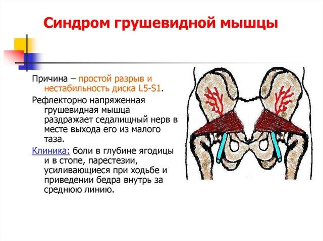 Правила тейпирования тазобедренного сустава и отзывы об эффективности