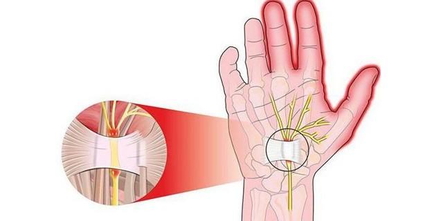 Болезнь де Кервена: симптомы и лечение синдрома
