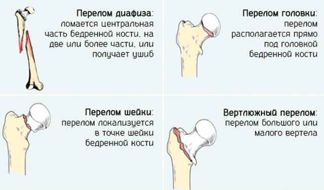 Перелом костей таза — симптомы, лечение и последствия
