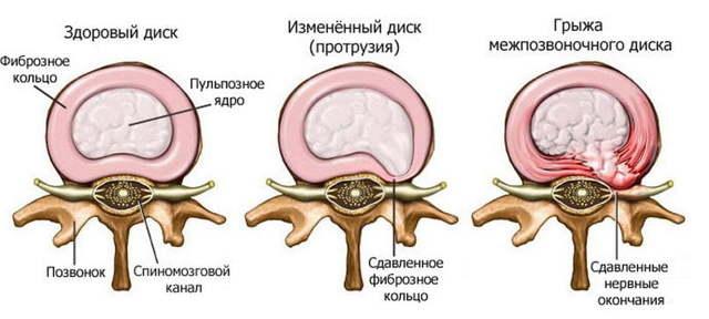 Мануальная терапия шейного отдела позвоночника при остеохондрозе
