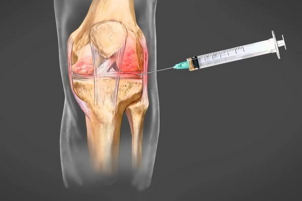 Пункция коленного сустава: показания и проведение