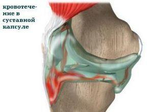 Артротомия сустава - виды операции, осложнения
