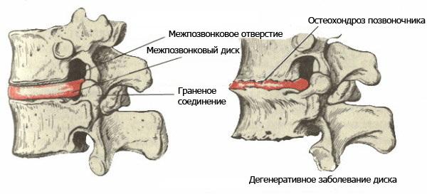 Бассейн при остеохондрозе шейного отдела позвоночника