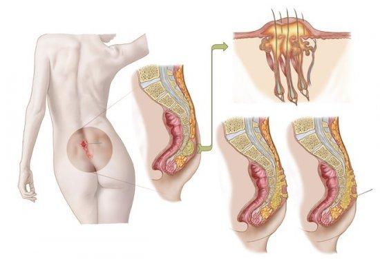 Воспаление копчика: причины, симптомы, лечение