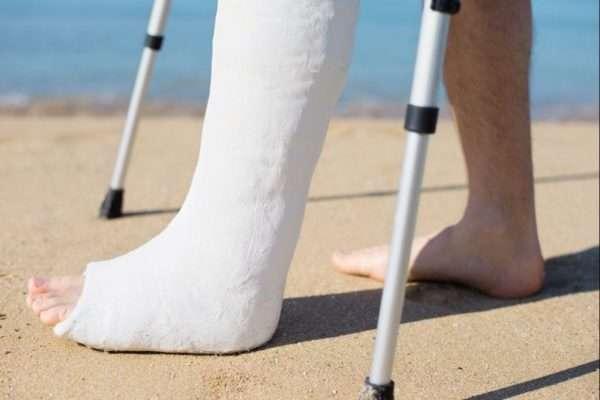 Перелом ладьевидной кости: симптомы, первая помощь и лечение