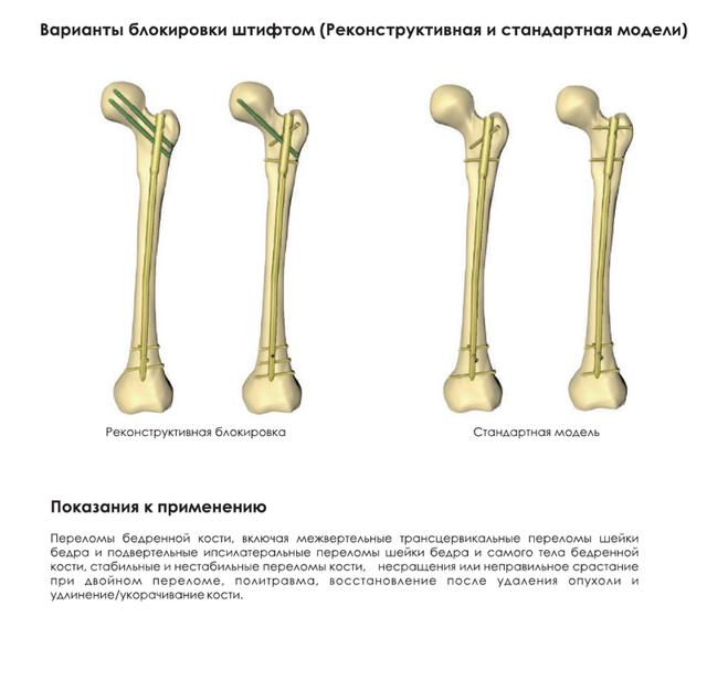 Остеома бедренной кости: симптомы, лечение и фото