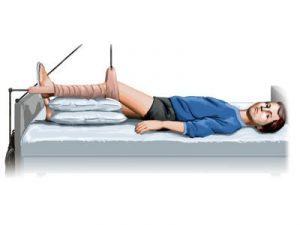 Болезнь Пертеса — причины, симптомы и методы лечения