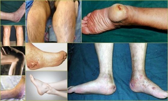 Остеомиелит – причины и симптомы острого и хронического остеомиелита, диагностика и лечение