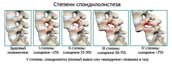 Смещение позвонков грудного отдела - симптомы и лечение