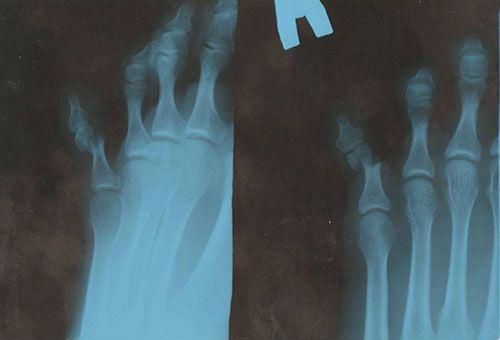 Перелом мизинца на ноге: симптомы, первая помощь и лечение