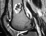 Энхондрома — что такое, почему возникает и как лечить