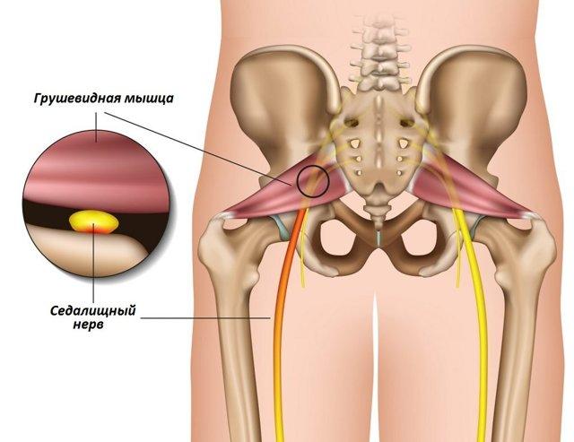 Синдром грушевидной мышцы: причины, симптомы и лечение