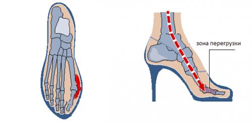 Вальгусная деформация большого пальца стопы (hallux valgus): степени, лечение
